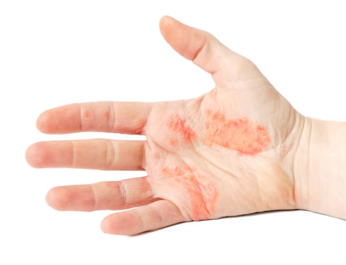 Bid Adieu to Dyshidrotic Eczema Flare-Ups with the Right Diet
